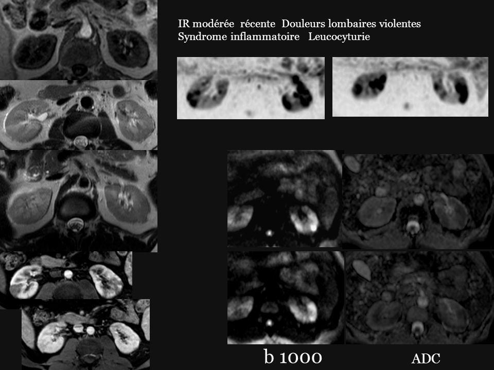 b 1000 ADC IR modérée récente Douleurs lombaires violentes