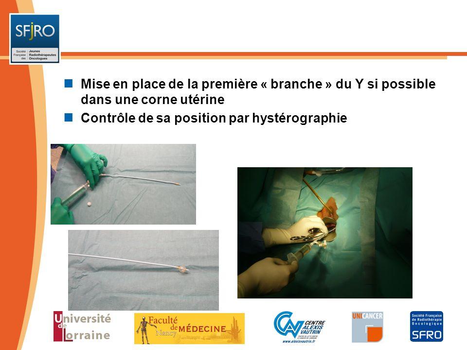 Mise en place de la première « branche » du Y si possible dans une corne utérine