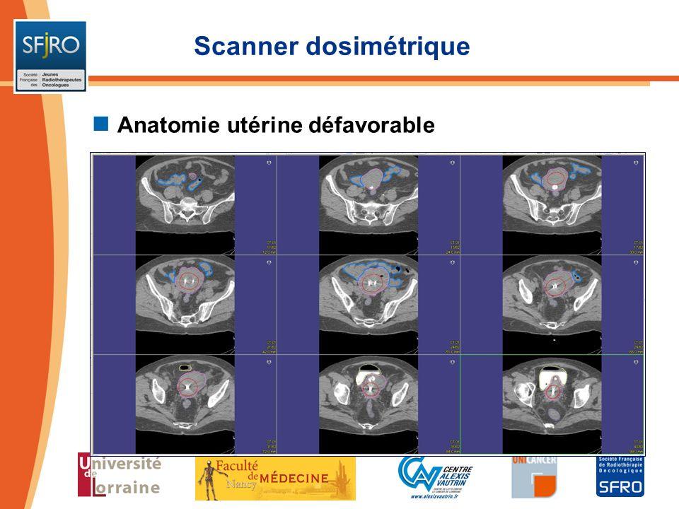 Scanner dosimétrique Anatomie utérine défavorable