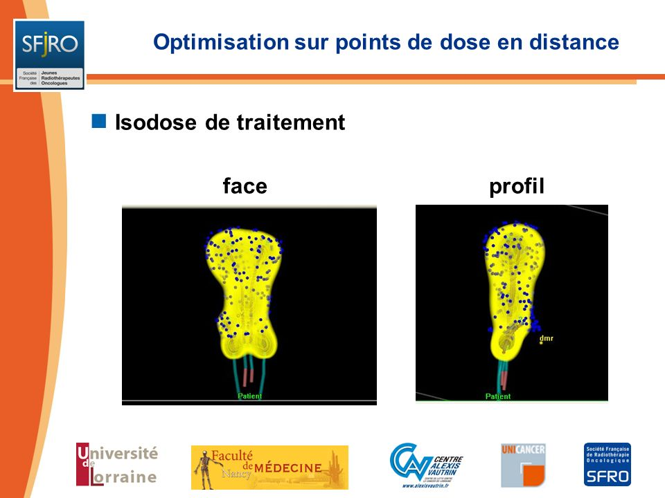 Optimisation sur points de dose en distance