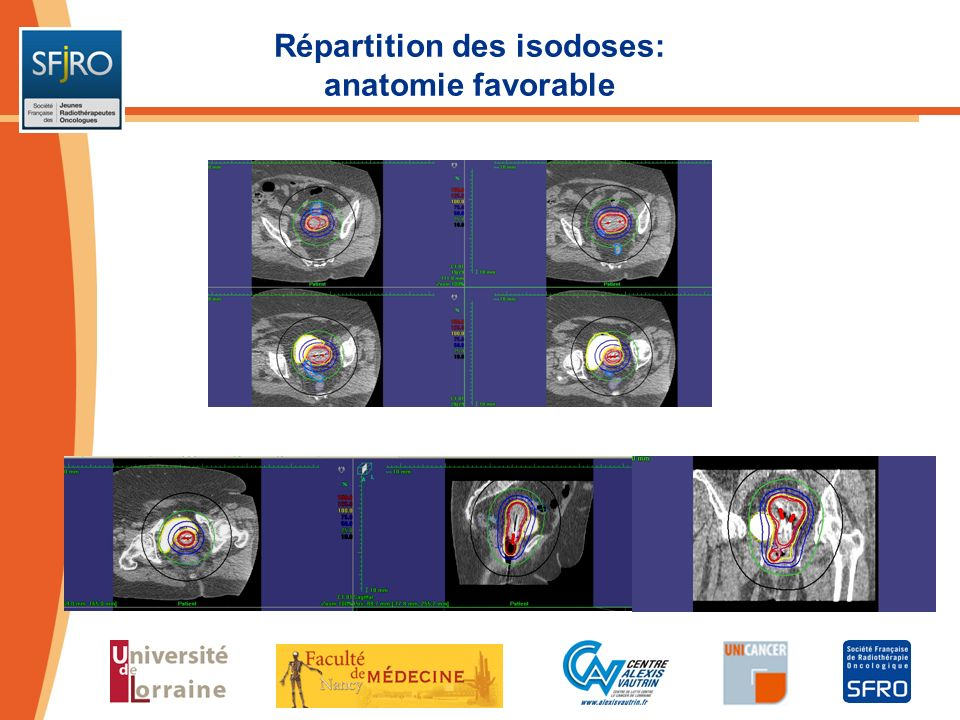 Répartition des isodoses: anatomie favorable