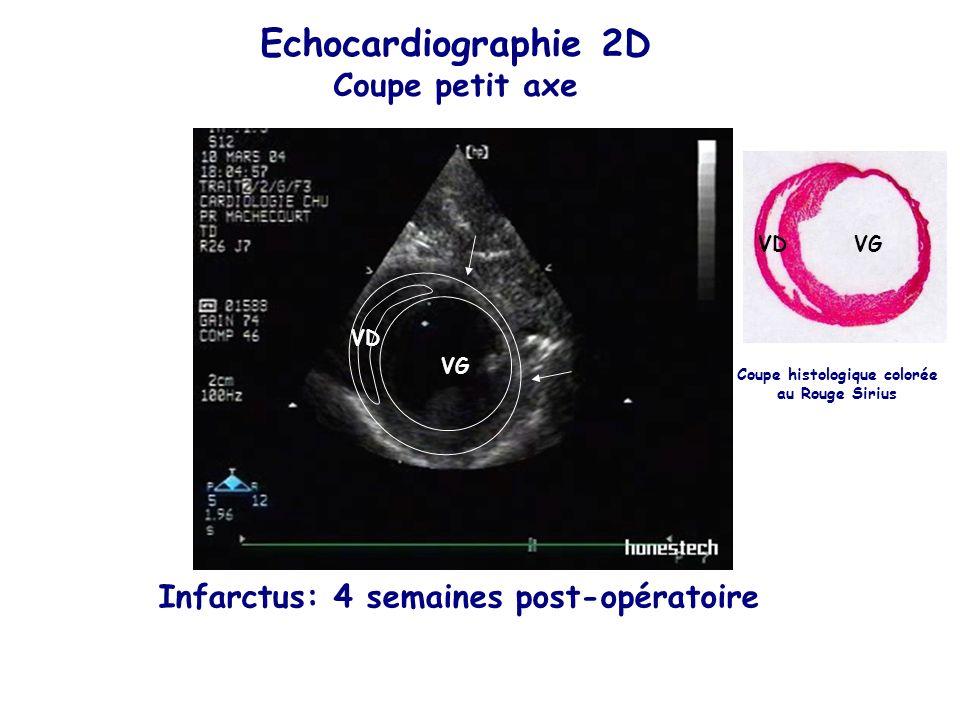 Echocardiographie 2D Coupe petit axe