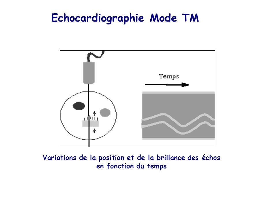 Echocardiographie Mode TM