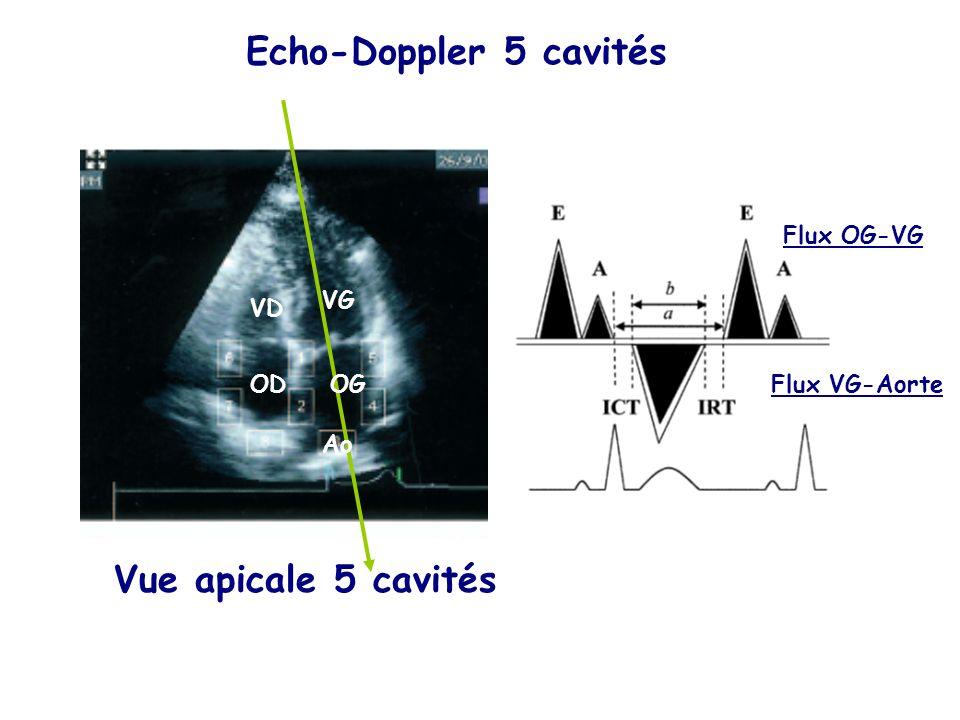 Echo-Doppler 5 cavités Vue apicale 5 cavités Flux OG-VG VG VD OD OG