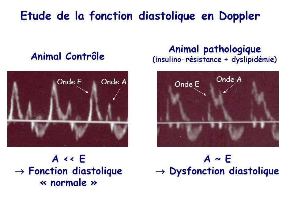 Etude de la fonction diastolique en Doppler