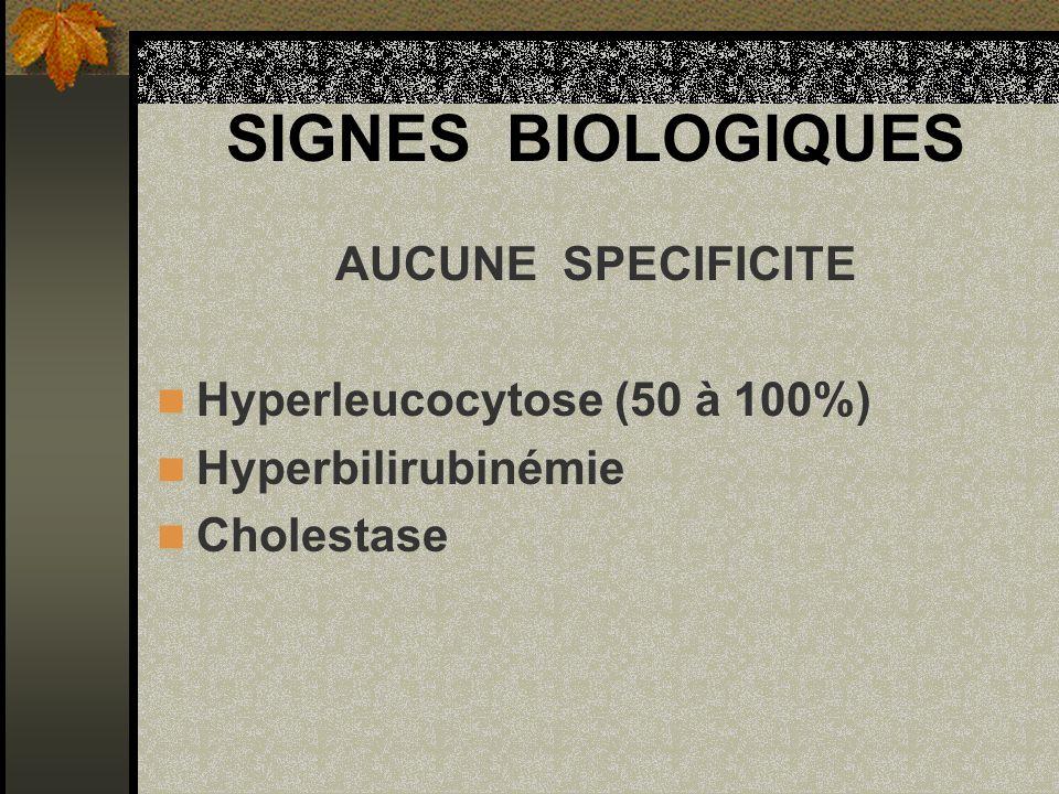 SIGNES BIOLOGIQUES AUCUNE SPECIFICITE Hyperleucocytose (50 à 100%)
