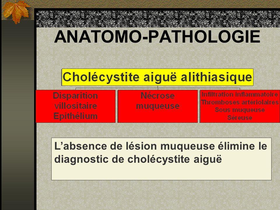 ANATOMO-PATHOLOGIE L'absence de lésion muqueuse élimine le