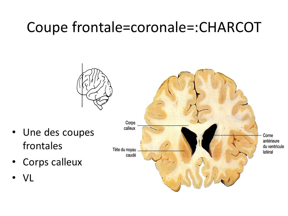 Coupe frontale=coronale=:CHARCOT