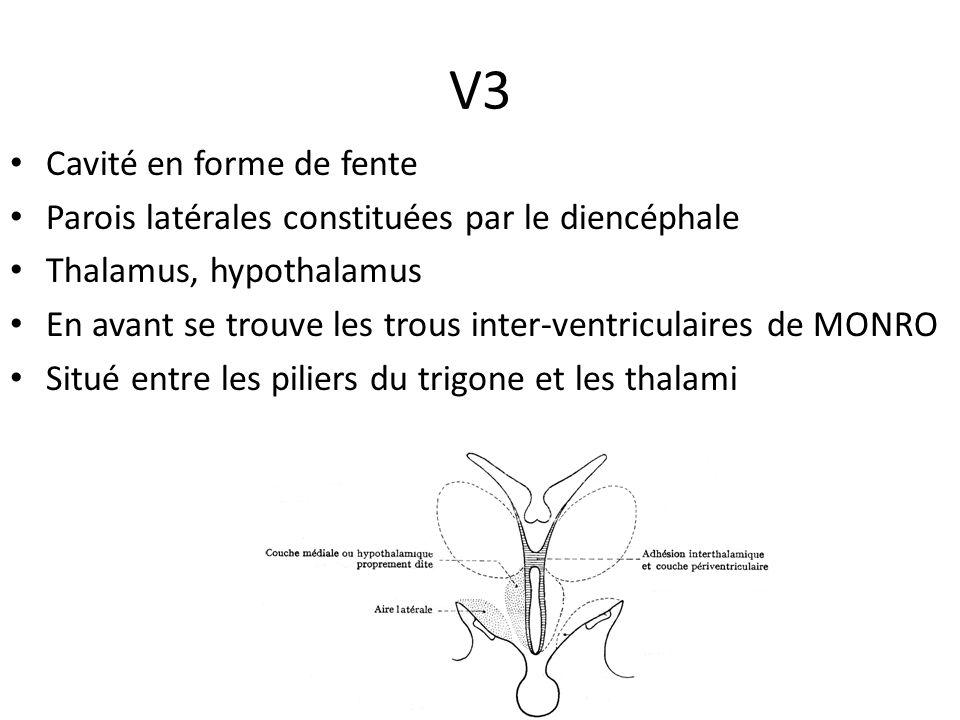 V3 Cavité en forme de fente