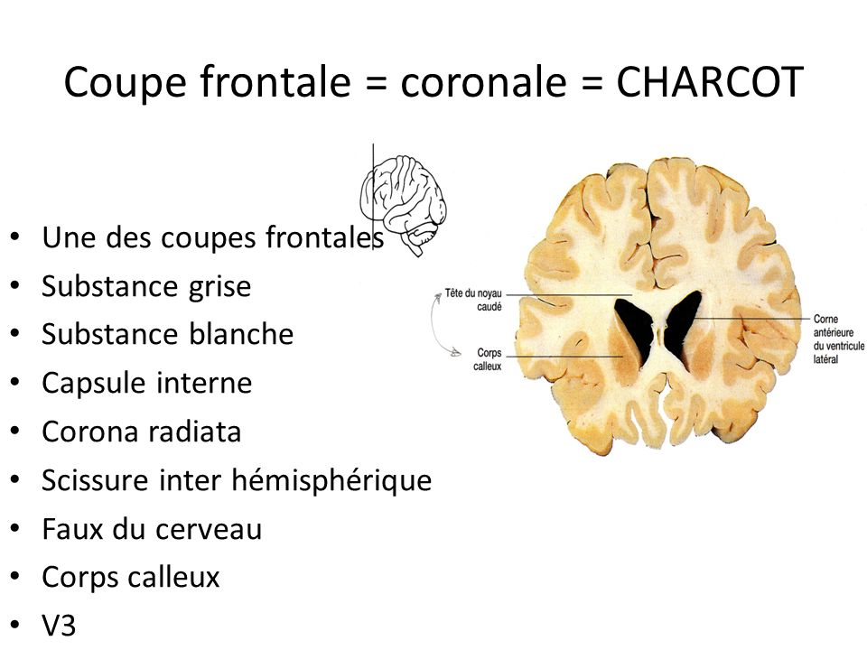 Coupe frontale = coronale = CHARCOT