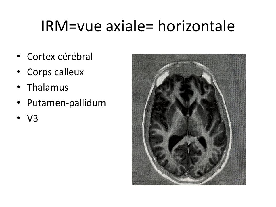 IRM=vue axiale= horizontale