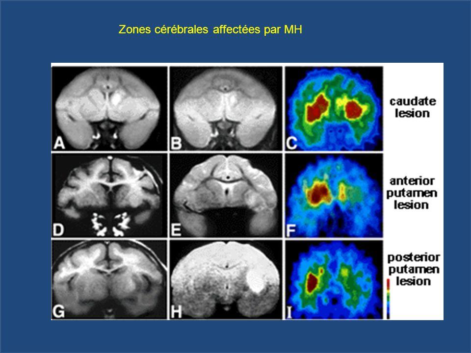Zones cérébrales affectées par MH