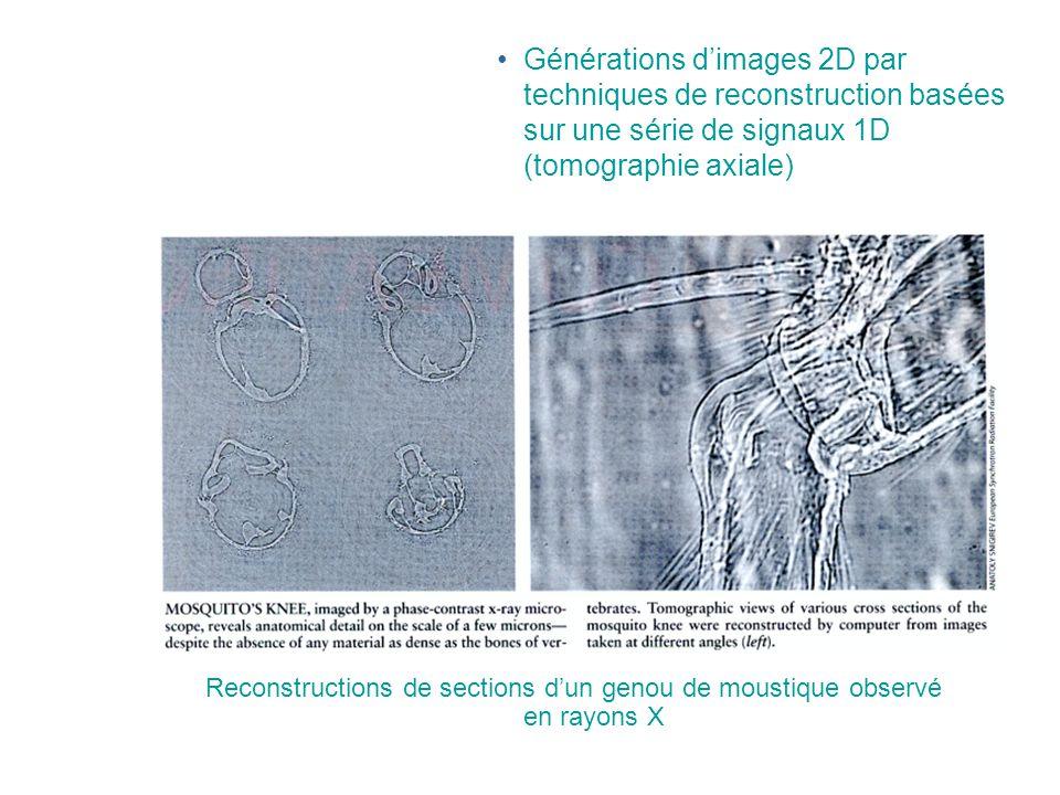Générations d'images 2D par techniques de reconstruction basées sur une série de signaux 1D (tomographie axiale)