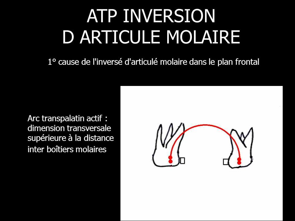 ATP INVERSION D ARTICULE MOLAIRE 1° cause de l inversé d articulé molaire dans le plan frontal