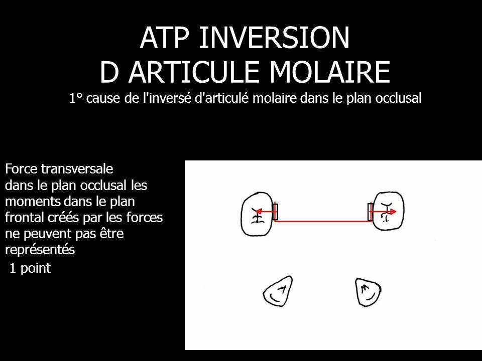 ATP INVERSION D ARTICULE MOLAIRE 1° cause de l inversé d articulé molaire dans le plan occlusal