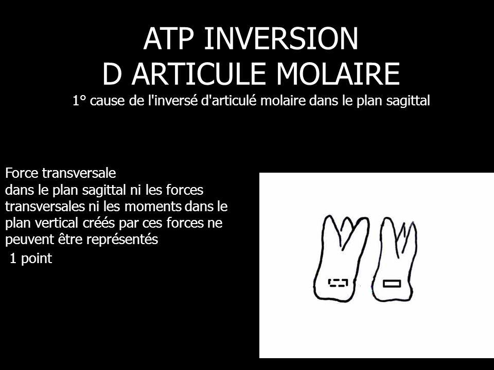 ATP INVERSION D ARTICULE MOLAIRE 1° cause de l inversé d articulé molaire dans le plan sagittal