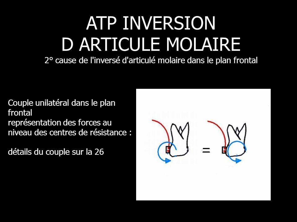 ATP INVERSION D ARTICULE MOLAIRE 2° cause de l inversé d articulé molaire dans le plan frontal