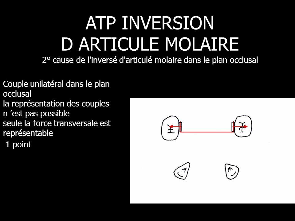ATP INVERSION D ARTICULE MOLAIRE 2° cause de l inversé d articulé molaire dans le plan occlusal