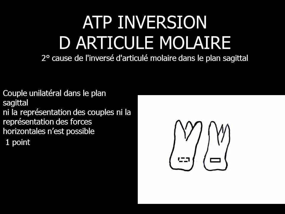 ATP INVERSION D ARTICULE MOLAIRE 2° cause de l inversé d articulé molaire dans le plan sagittal