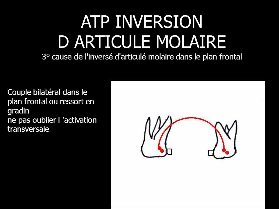 ATP INVERSION D ARTICULE MOLAIRE 3° cause de l inversé d articulé molaire dans le plan frontal
