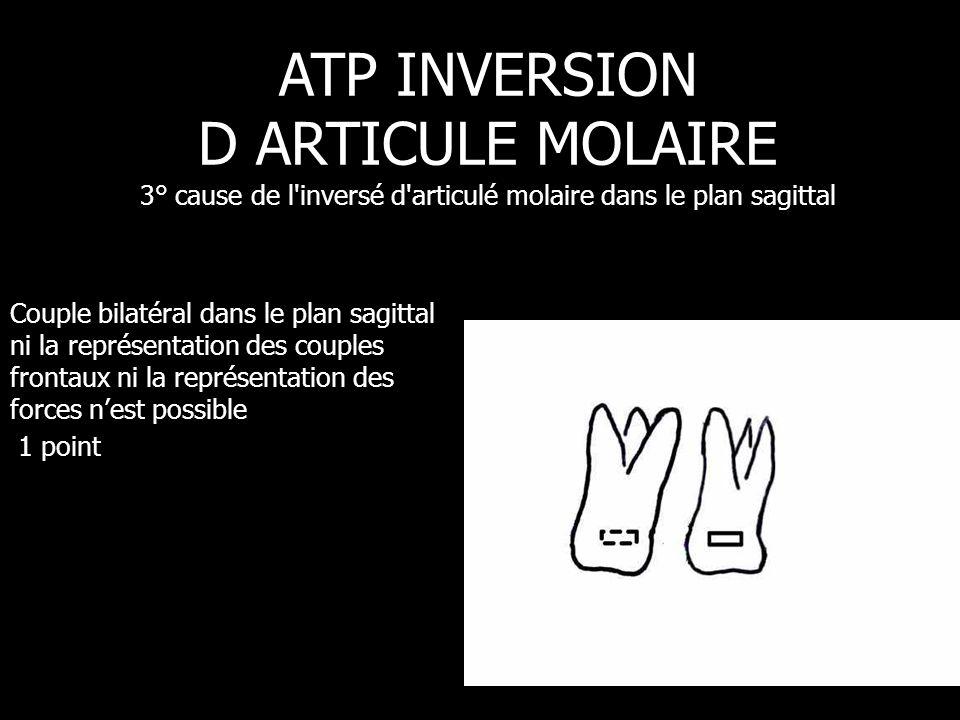ATP INVERSION D ARTICULE MOLAIRE 3° cause de l inversé d articulé molaire dans le plan sagittal