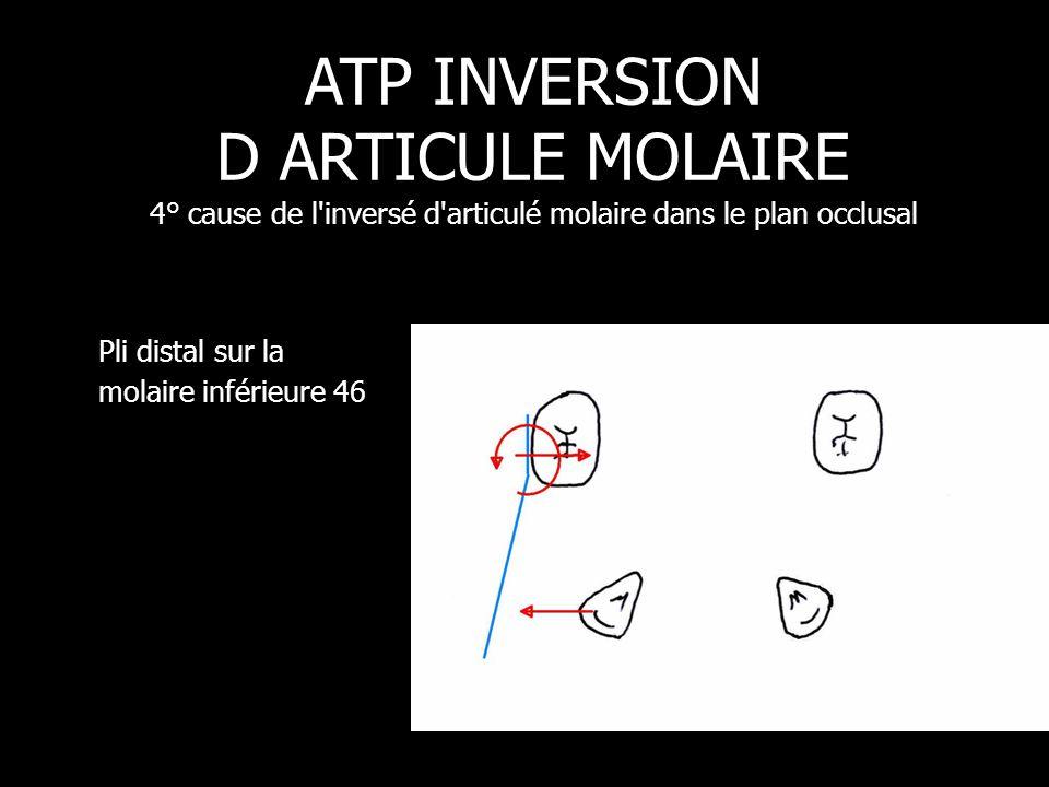 ATP INVERSION D ARTICULE MOLAIRE 4° cause de l inversé d articulé molaire dans le plan occlusal