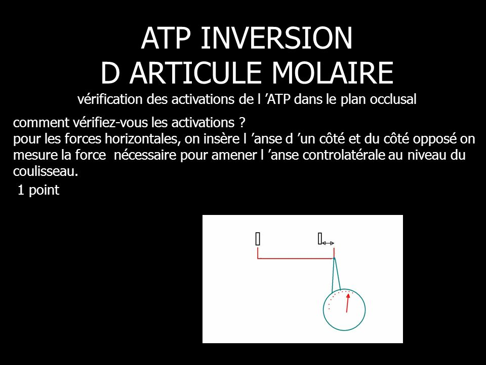 ATP INVERSION D ARTICULE MOLAIRE vérification des activations de l 'ATP dans le plan occlusal
