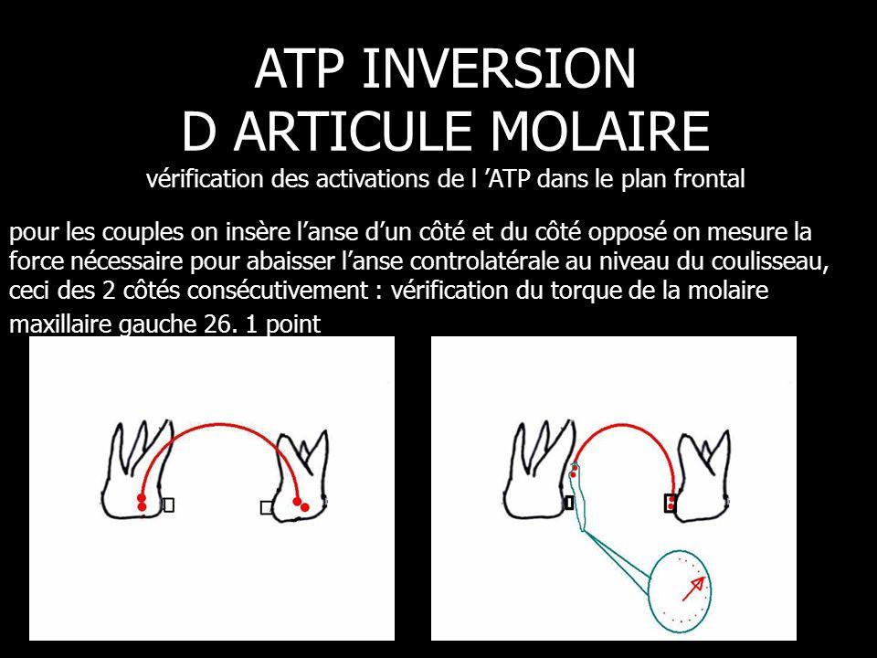 ATP INVERSION D ARTICULE MOLAIRE vérification des activations de l 'ATP dans le plan frontal