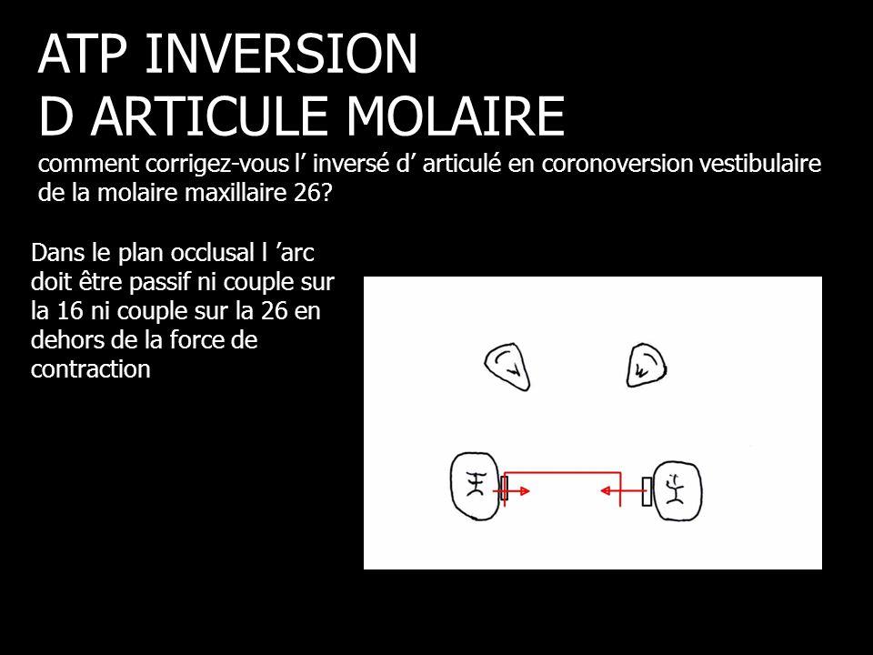 ATP INVERSION D ARTICULE MOLAIRE comment corrigez-vous l' inversé d' articulé en coronoversion vestibulaire de la molaire maxillaire 26