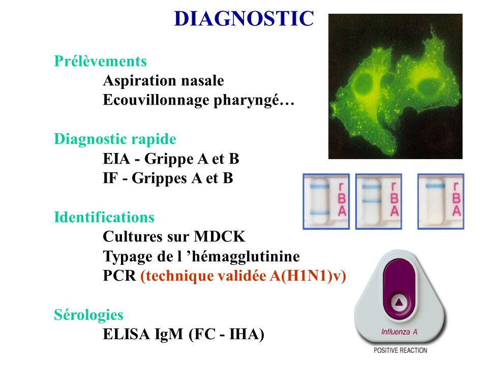 DIAGNOSTIC Prélèvements Aspiration nasale Ecouvillonnage pharyngé…