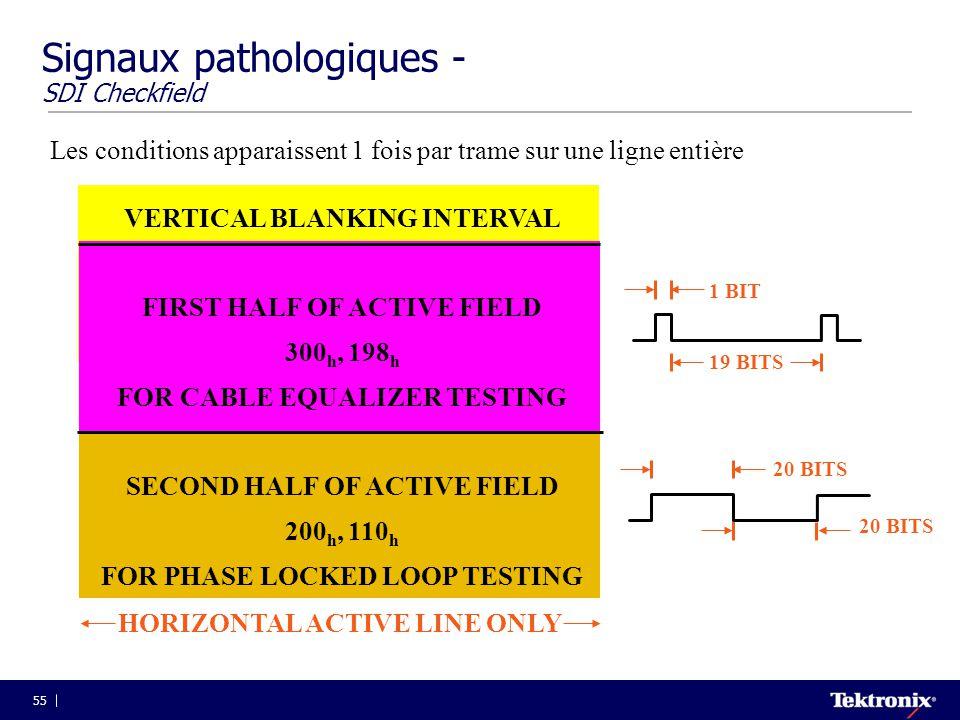 Signaux pathologiques - SDI Checkfield