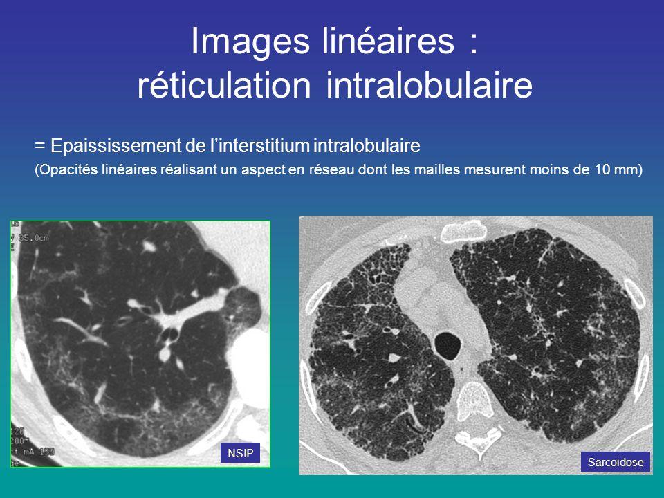 Images linéaires : réticulation intralobulaire