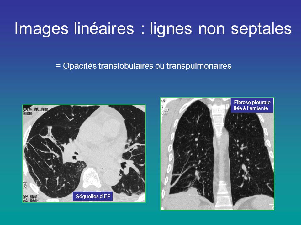 Images linéaires : lignes non septales