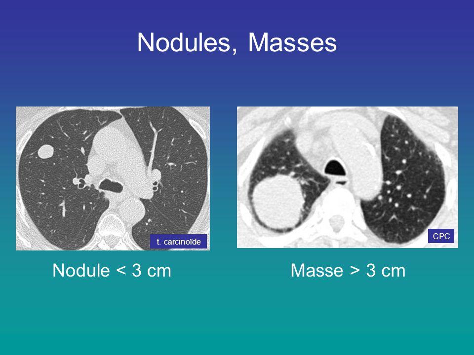 Nodules, Masses CPC t. carcinoïde Nodule < 3 cm Masse > 3 cm
