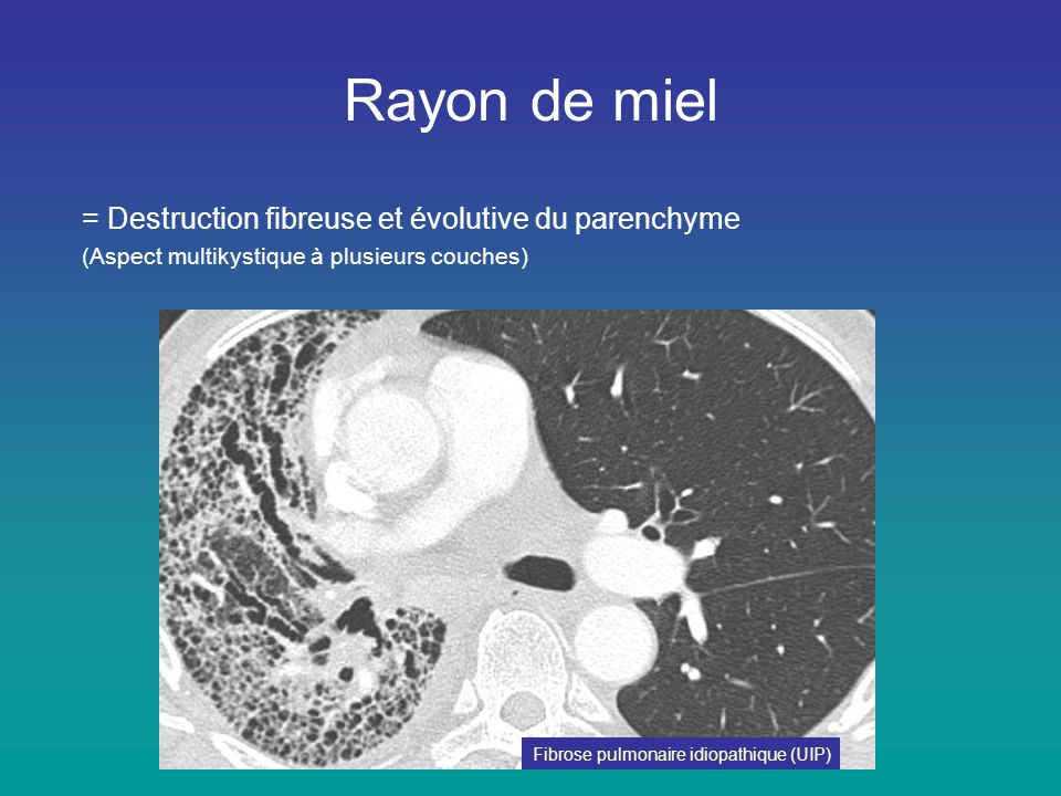 Rayon de miel = Destruction fibreuse et évolutive du parenchyme