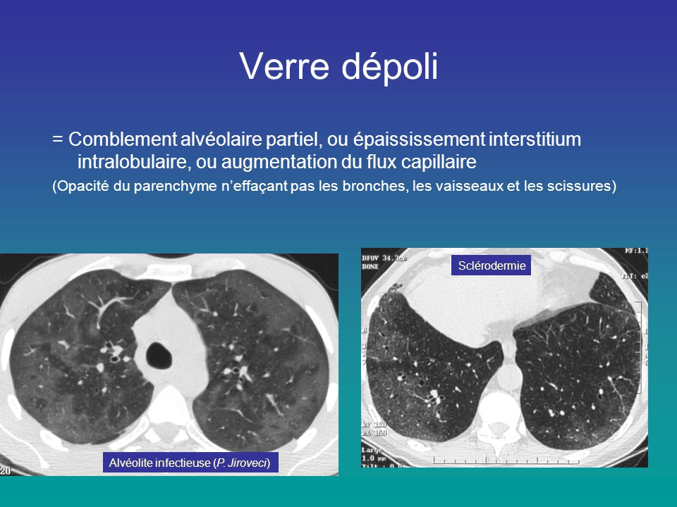 Verre dépoli = Comblement alvéolaire partiel, ou épaississement interstitium intralobulaire, ou augmentation du flux capillaire.