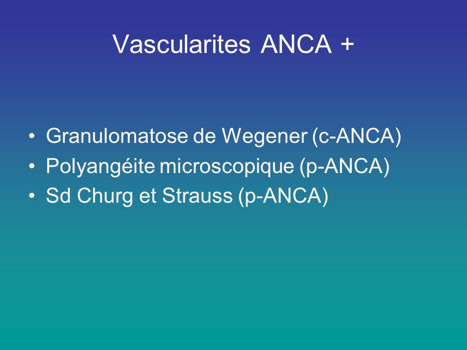 Vascularites ANCA + Granulomatose de Wegener (c-ANCA)