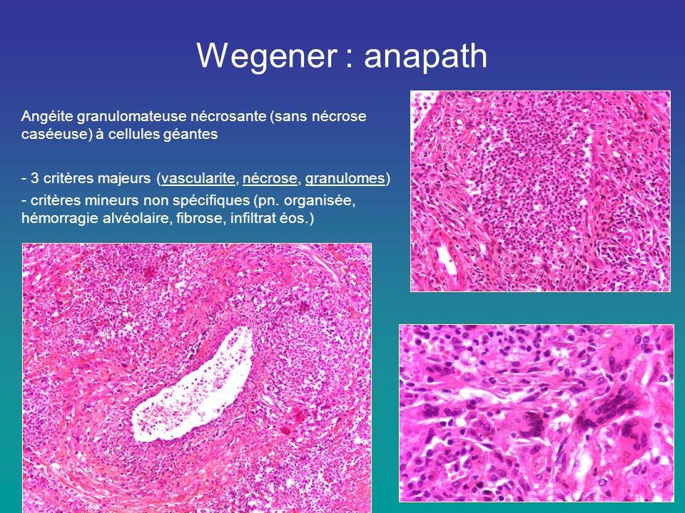 Wegener : anapath Angéite granulomateuse nécrosante (sans nécrose caséeuse) à cellules géantes.