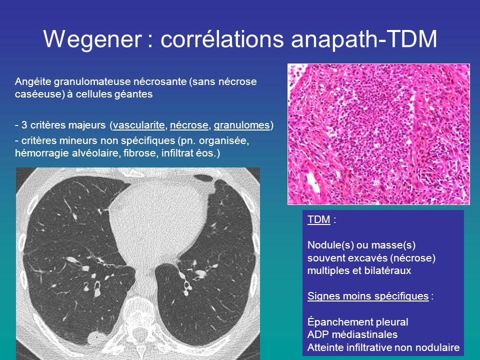 Wegener : corrélations anapath-TDM