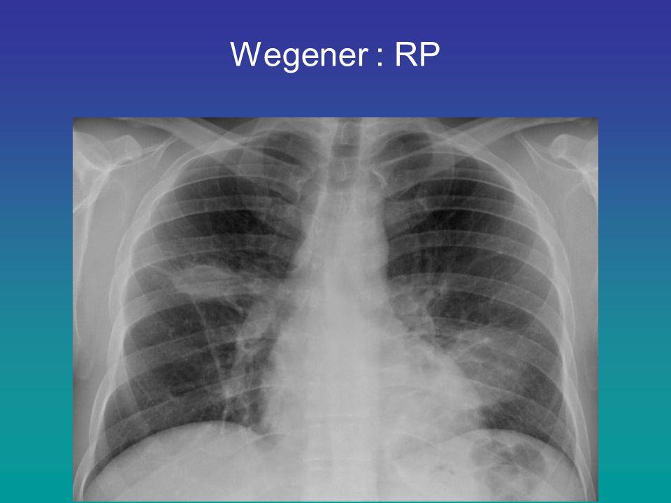 Wegener : RP