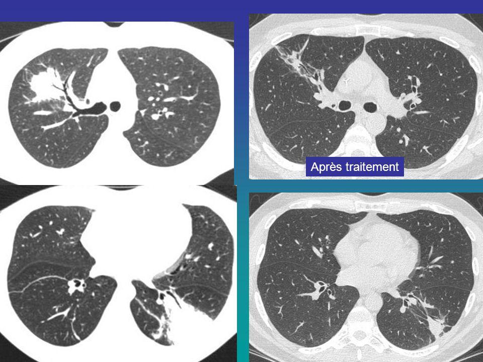 Patiente 52 ans, toux trainante, asthénie, apyrexie