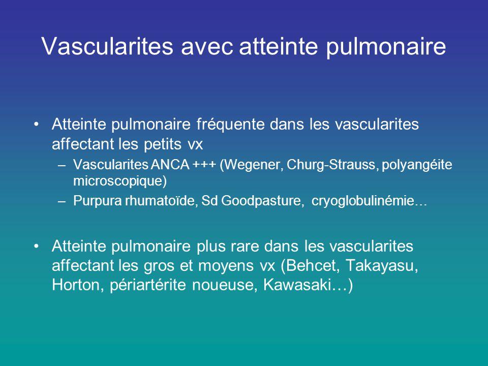 Vascularites avec atteinte pulmonaire