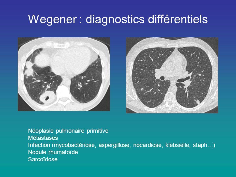 Wegener : diagnostics différentiels