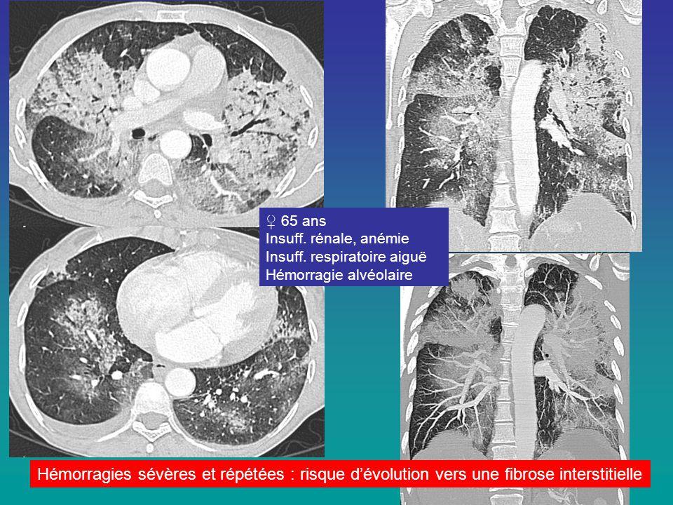 ♀ 65 ans Insuff. rénale, anémie. Insuff. respiratoire aiguë. Hémorragie alvéolaire.