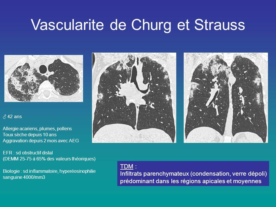 Vascularite de Churg et Strauss