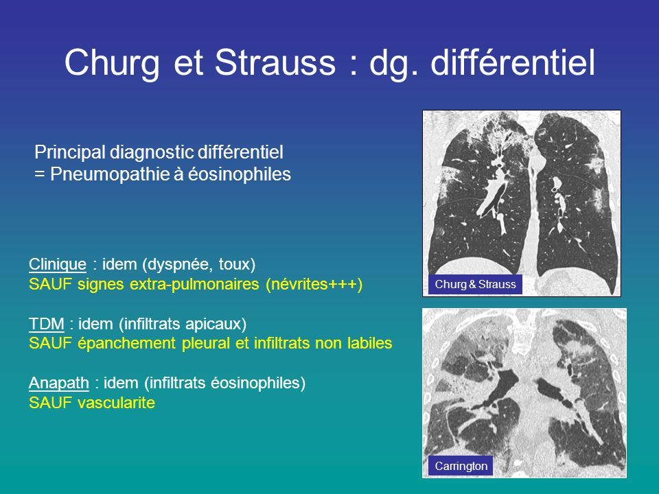 Churg et Strauss : dg. différentiel