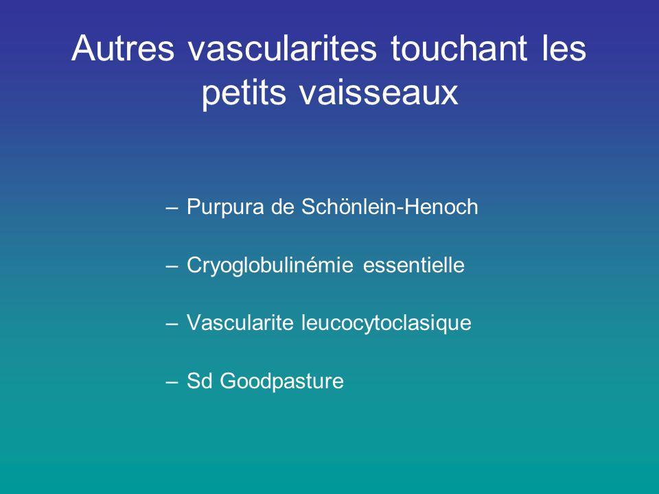 Autres vascularites touchant les petits vaisseaux