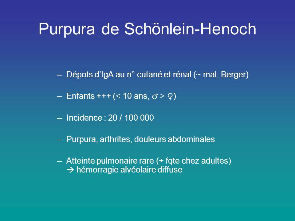 Purpura de Schönlein-Henoch
