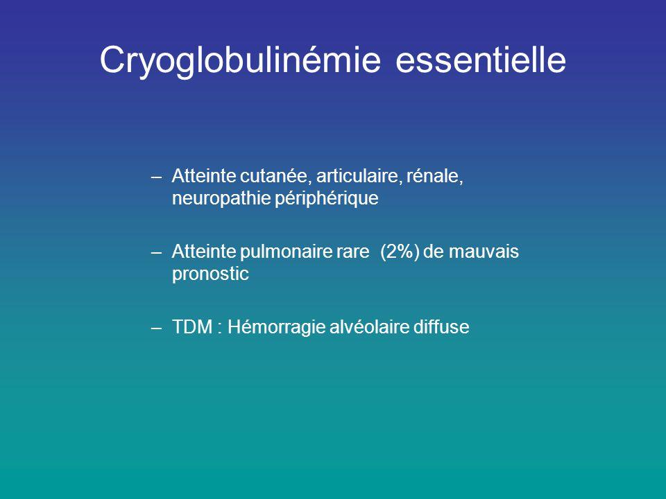 Cryoglobulinémie essentielle