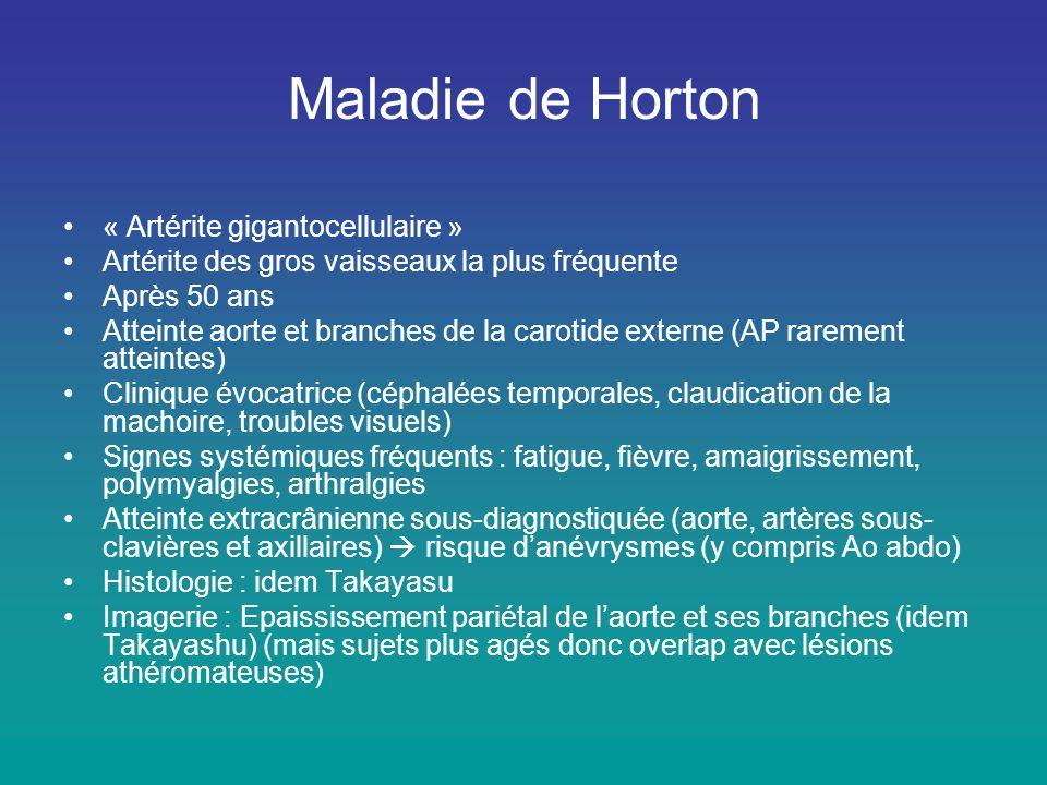 Maladie de Horton « Artérite gigantocellulaire »